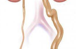 Особенности уродинамики при гидроуретеронефрозе