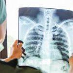Ученые усомнились в истинной причине отказа легких при коронавирусе