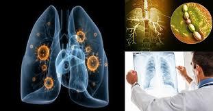 Новая вакцина работает против любых форм бактерий, вызывающих пневмонию