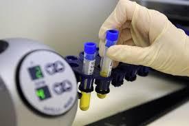 Ученые Иркутска выделили новый штамм актинобактерий, способный продуцировать антибиотики