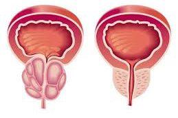 Применение альфа-блокаторов для устранения симптомов со стороны нижних мочевыводящих путей при доброкачественной гиперплазии простаты
