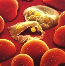 Тропические и опасные инфекции