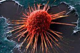 Российские ученые представили точную систему ранней диагностики рака