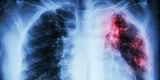 Уникальный механизм лечения туберкулеза предложило лекарство Sirturo
