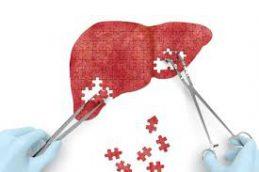 В России резко увеличилась доля пациентов с гепатитом С, получающих пангенотипные схемы терапии