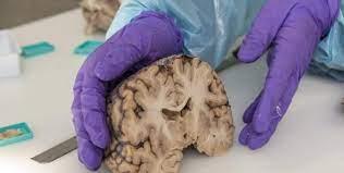 Изучение экспрессии генов в клетках мозга после смерти