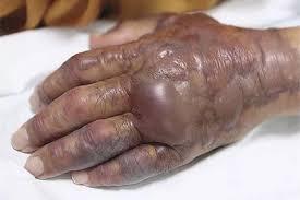 Любителю суши ампутировали руку из-за инфекции