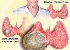 Рак щитовидной железы: кто находится в группе риска