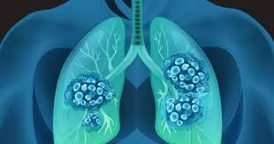 Ученые назвали лучшего борца с пневмонией