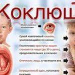 Современные тенденции заболеваемости коклюшем, лечение и профилактика