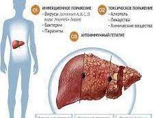 Особенности поpажения печени пpи лептоспиpозе