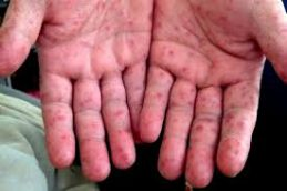 Об энтеровирусной инфекции