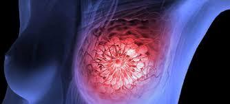 Американские пациенты получат доступ к новой терапии рака молочной железы