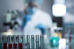 Ученые обнаружили новый штамм ВИЧ впервые за 19 лет