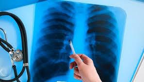 Портрет больного туберкулезом легких с сопутствующим сахарным диабетом