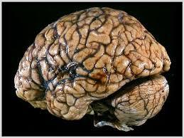 Атрофия головного мозга как важный индикатор прогрессирования рассеянного склероза