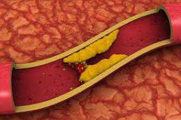 Американским ученым удалось убрать ген, повышающий холестерин