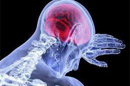 Инсульты у молодых стали встречаться чаще инфарктов. Ученые недоумевают
