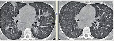 Аллергическое воспаление лёгочной ткани — эозинофильная пневмония