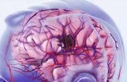 Ишемический инсульт не терпит промедления
