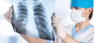 Крысы выявляют туберкулез лучше, чем медицинский анализ