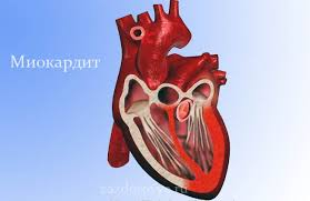Китайские кардиологи разработали новый метод лечения молниеносно протекающего миокардита