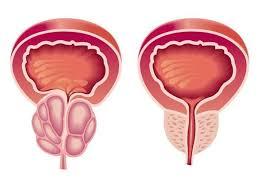 Эффективность простатилена АЦ в коррекции нарушений копулятивной функции больных хроническим абактериальным простатитом