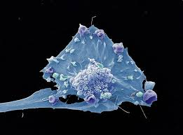Спасением от рака может стать терапия проказы