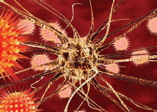 Энцефалит как проявление нейросифилиса у ВИЧ-инфицированного