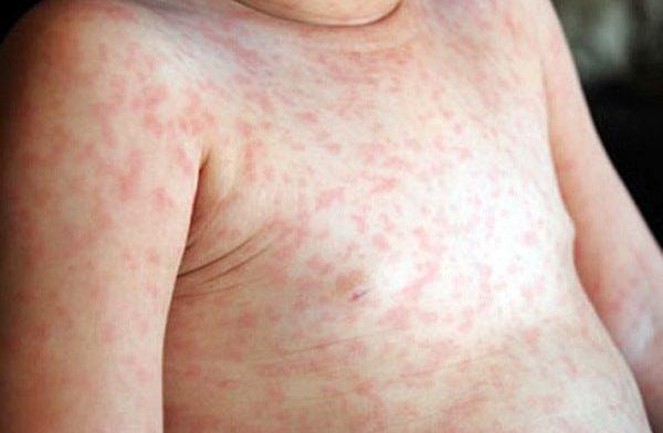 Клиническая картина менингококковой инфекции