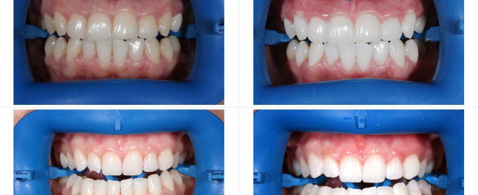 Профессиональные методы отбеливания зубов