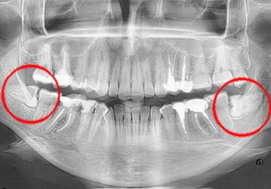 Когда нужно удалять зуб?
