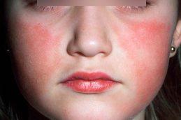 Инфекционная эритема: причины, стадии, симптомы и лечение
