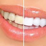 Чистка зубов и ее цена