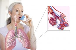 Понятие бронхиальной астмы. Актуальность заболевания