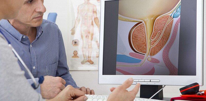 Лечение инфекционного простатита: описание методов терапии воспаления простаты