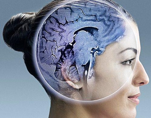 МРТ мозга — о чем можно узнать по такому исследованию