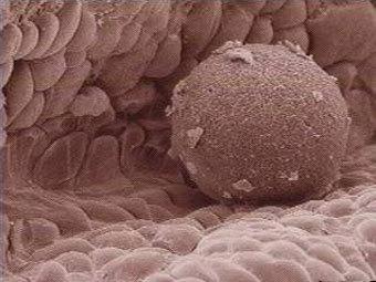 Опасно ли быть донором яйцеклетки