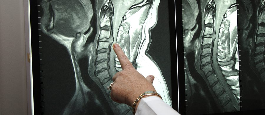 Современная диагностика МРТ