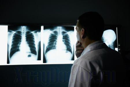 Флюорография — как выглядит бронхит и туберкулез на снимке