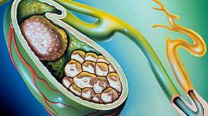 Диета при желчекаменной болезни и после удаления желчного пузыря