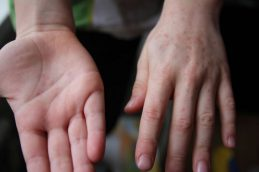 В Березняках фиксируется высокий уровень заболеваемости энтеровирусной инфекцией