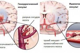 Симптомы и причины инсульта. Лечение патологии