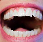 Зима, простудные заболевания, грипп и гаймориты опасны для зубов