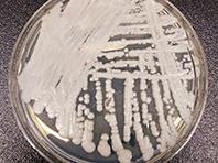 Опасный грибок адаптировался к мировому изменению климата, показал анализ