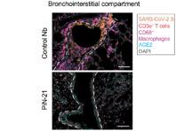 Спрей с мини-версиями антител обещает избавить от коронавируса