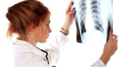Первые симптомы туберкулеза лёгких