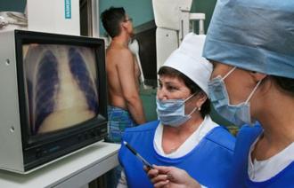 История болезни туберкулез легких