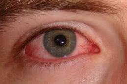 Герпетическая инфекция глаз