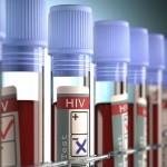 В России создадут федеральный регистр пациентов с ВИЧ-инфекцией